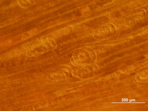 alt: Larvy svalovce v roztlakovém preparátu bránice, kam se hlístice při své migraci často uchylují. I v takto malém kousku tkáně napočítáme osm larev. Foto: Tomáš Macháček.